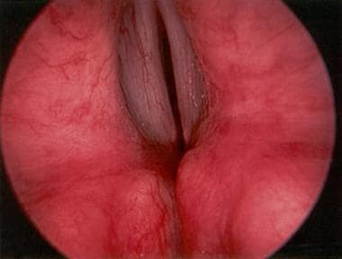Direct laryngoscopic view of the larynx in a patie