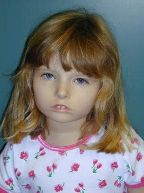 Child with Möbius syndrome, eyes open. Image court