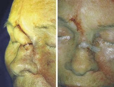 The left photograph is the planned pedicle divisio