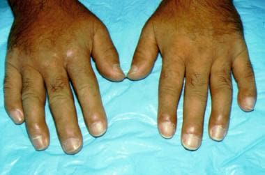 Scleroderma affecting the hands. Note the taut app