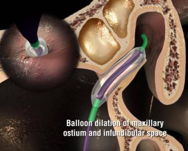Dilation of the maxillary ostium with the Entellus