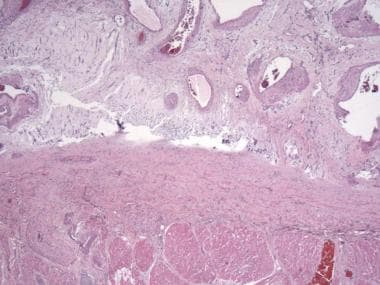 Larger, thick-walled blood vessels are frequently