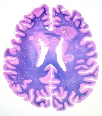 A whole-mount histologic section of a brain staine