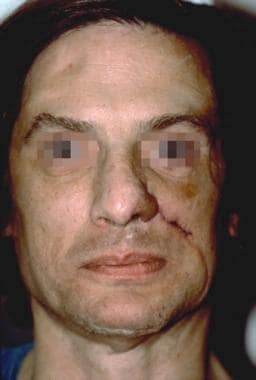 Case 5. Early postoperative result at 2 weeks afte