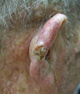 A central keratotic squamous cell carcinoma with a