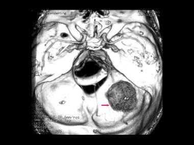 von Hippel-Lindau syndrome. Axial volume rendering
