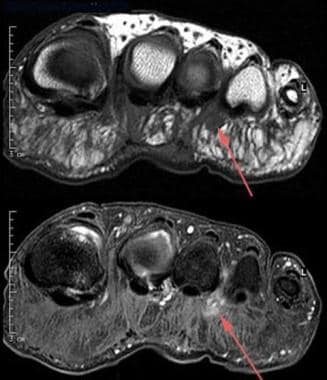 Morton neuroma. Transverse T1-weighted (top) and c