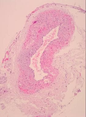 Giant cell arteritis. Low-power view of a normal t