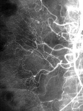 Polyarteritis nodosa. Superior mesenteric injectio