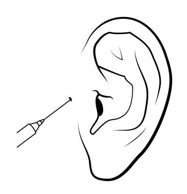 Technique to anesthetize the helix and tragus.