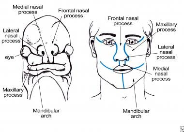 Maxillary process grows medially and overrides the