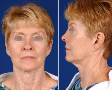A 64-year-old woman with characteristic facial agi