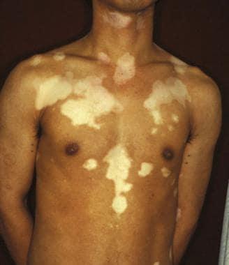 Trichrome vitiligo.