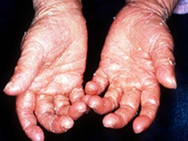 Keratoderma of the palms in a patient with lamella