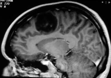 For tumors, MRI has the advantage of showing the l