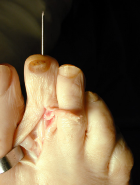 Claw toe. Toe in straightened position, with a dor