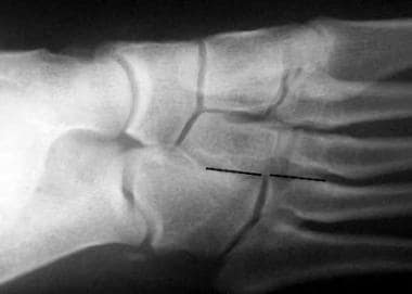 In this medial oblique radiograph of a normal foot