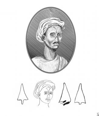 Reproduction of plate from Susruta showing style o