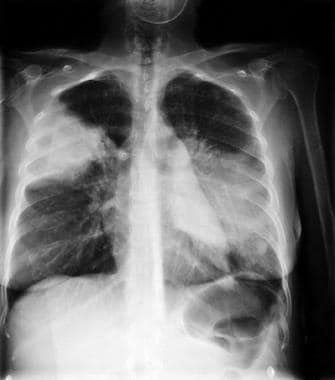 A 28-year-old woman who was a former intravenous d