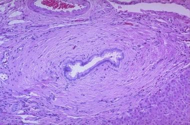 Periductal onion skin fibrosis seen in primary scl