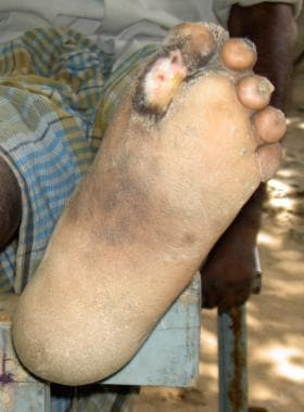 Chronic nonhealing ulcer at the metatarsal head re