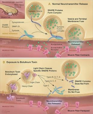 Courtesy of Arnon SS, et al. Botulinum toxin as a