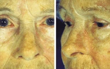 The left photograph shows a 2-year postoperative f