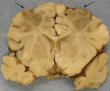 Bilateral acute infarctions of the frontal lobe ar