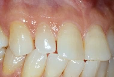 The attached gingiva adjacent to the teeth is kera