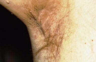 Acanthosis nigricans (AN) in a patient with pancre
