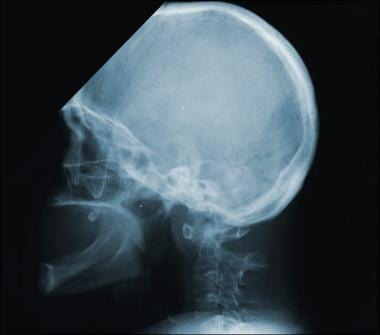 This radiograph is of the same patient shown in th