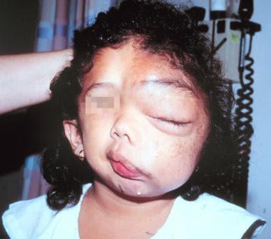 Massive facial deformity in a young girl severely