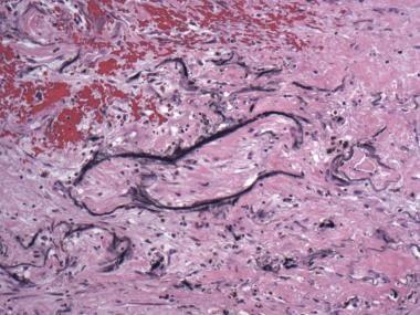Photomicrograph shows appearance of Gamna-Gandy bo