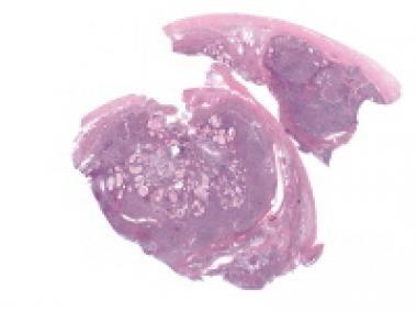 Moderately differentiated Sertoli-Leydig cell tumo