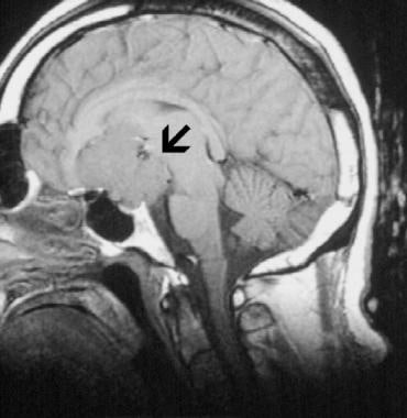 Image 1: Meningiomas are typically isointense on T