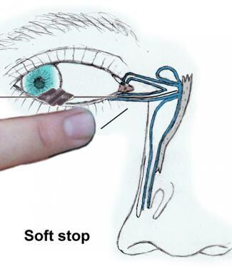 """Soft stop"" occurs when distal progress of probe i"