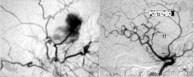 Embolization may be the only treatment required in