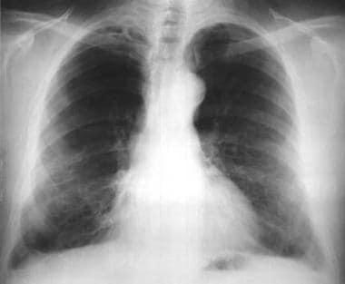 Asbestosis. Posteroanterior chest radiograph revea