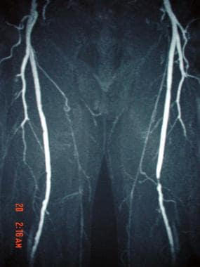 This magnetic resonance angiogram (MRA) of the low