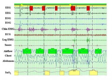 Compressed overnight polysomnography tracing of a