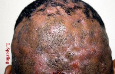 Perifolliculitis capitis abscedens et suffodiens i