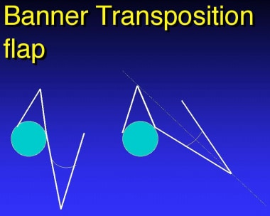 Banner transposition flap.