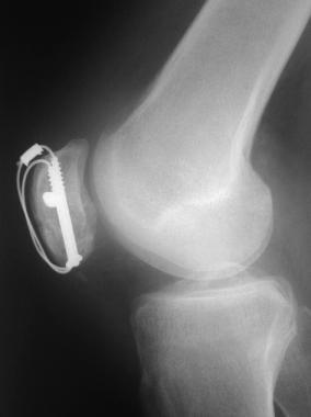 Postoperative lateral radiograph of patella fractu