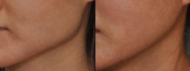surgical reduction of the mandibular angle (same p