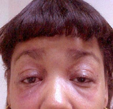 Heliotrope rash in woman with dermatomyositis.