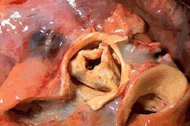 Stenotic aortic valve (macroscopic appearance).