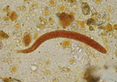 Rhabditiform larva of Strongyloides stercoralis in