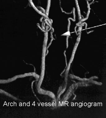 Magnetic resonance angiography (MRA) with 3-dimens