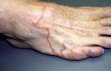 Cutaneous larva migrans involving the dorsal foot.