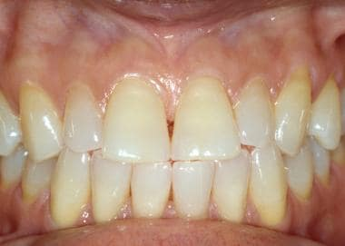 Alveolar mucosa extends from the mucogingival junc